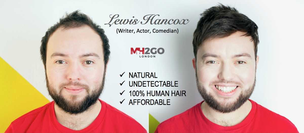 Mens Hair 2 Go Systems Uk Replacement