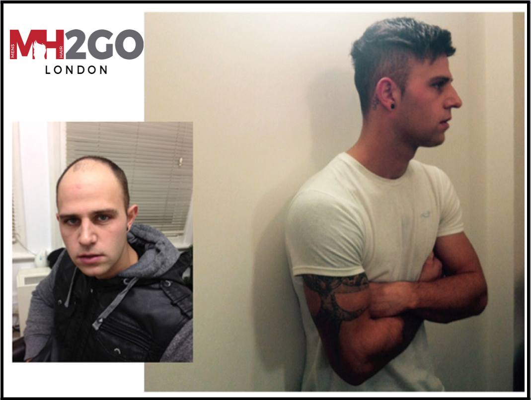 Mens Hair 2 Go Hair Systems Uk Mens Hair Replacement