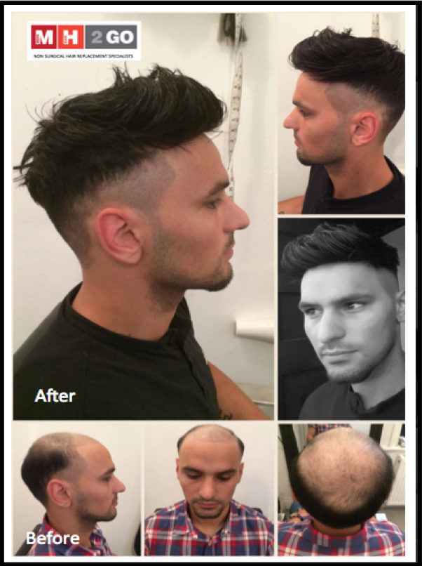 Mens Hair 2 Go Hair Systems Uk Mens Hair Replacement Hair Systems